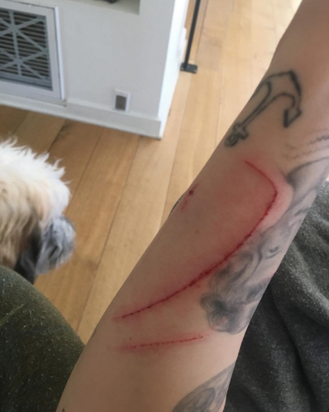 miley-cyrus-attacked-cat-bloodied-arm